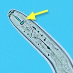 <p>Photo 3. The head of <EM>Pratylenchus</EM>&nbsp;sp. showing the hollow spear or stylet (arrow), which is used to puncture cells in order to move through the roots,&nbsp;as well as&nbsp;to feed on their contents.</p>